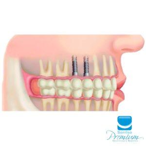 Implante Dentário - Sorriso Premium