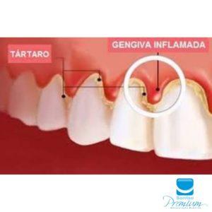Periodontia - Sorriso Premium