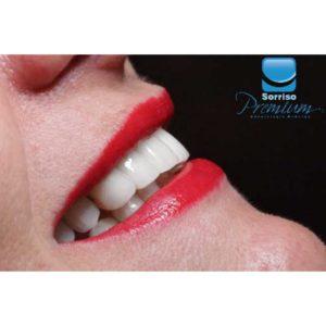 Reabilitação Oral - Sorriso Premium